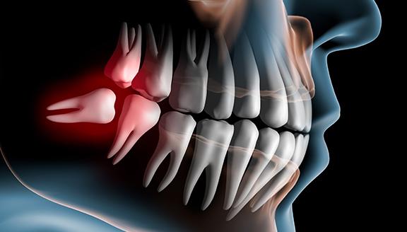 yas-oral-surgery