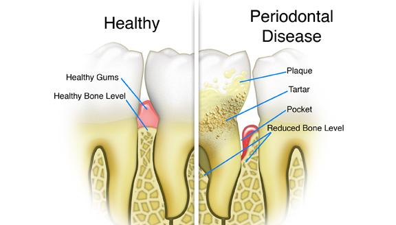 yas-periodontal
