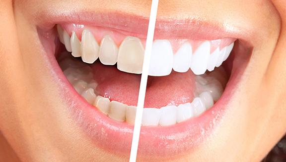 yas-teethwhitening